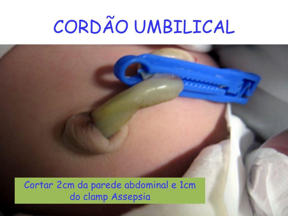 CORDÃO UMBILICAL Cortar 2cm da parede abdominal e 1cm do clamp Assepsia