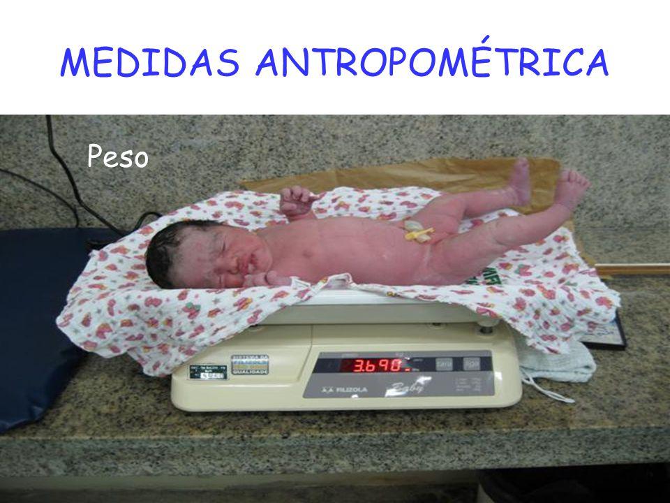 MEDIDAS ANTROPOMÉTRICA Peso