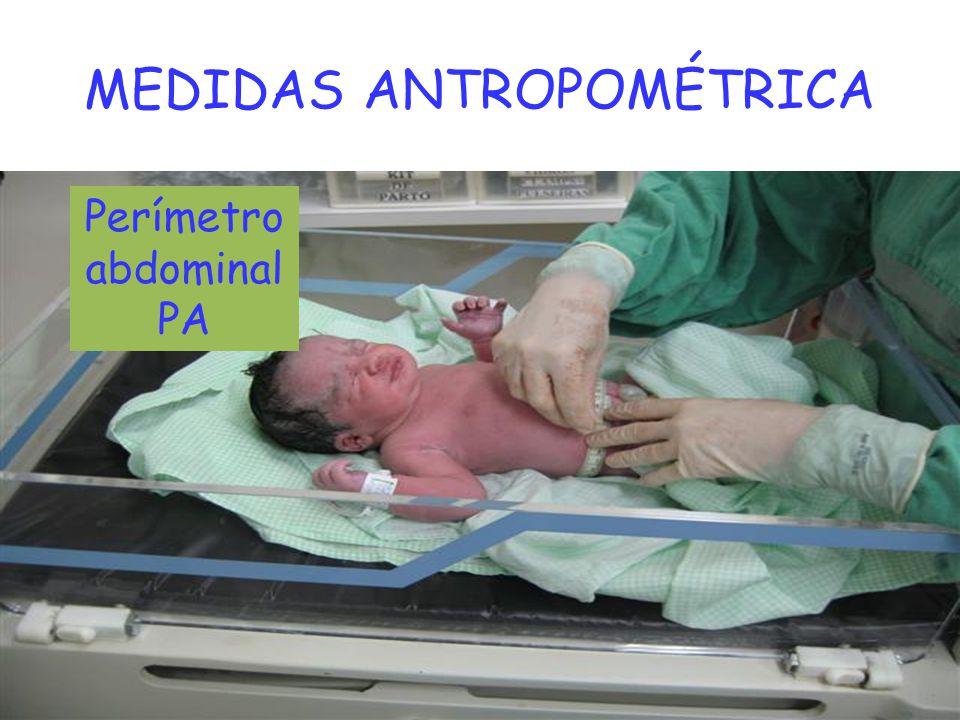 MEDIDAS ANTROPOMÉTRICA Perímetro abdominal PA