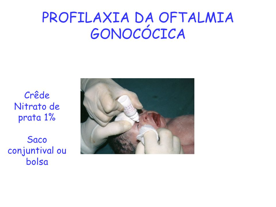PROFILAXIA DA OFTALMIA GONOCÓCICA Crêde Nitrato de prata 1% Saco conjuntival ou bolsa