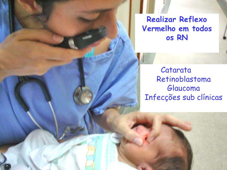 Catarata Retinoblastoma Glaucoma Infecções sub clínicas Realizar Reflexo Vermelho em todos os RN