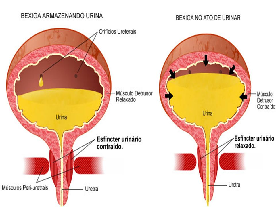 Existem diversos tipos de incontinência urinária, sendo estas as mais freqüentes: a) Incontinência urinária de esforço: compreende a perda de urina após a realização de um esforço, tal como tossir, espirrar, rir, subir escada, correr, entre outros.