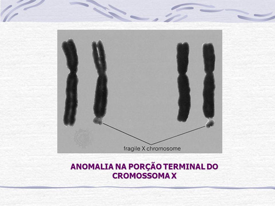 ANOMALIA NA PORÇÃO TERMINAL DO CROMOSSOMA X