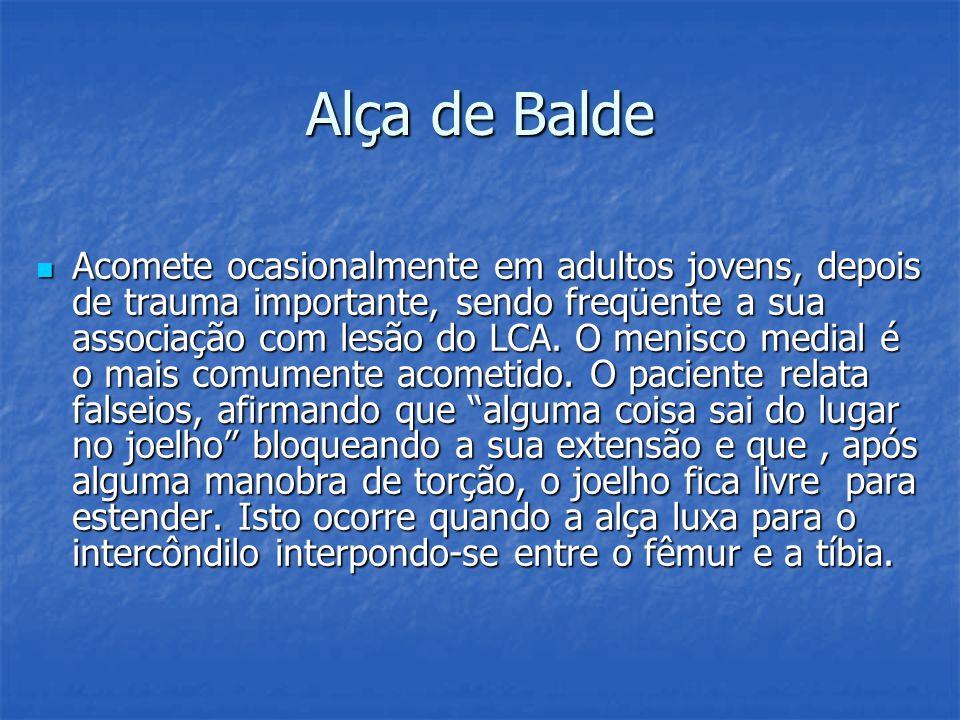 Alça de Balde Acomete ocasionalmente em adultos jovens, depois de trauma importante, sendo freqüente a sua associação com lesão do LCA. O menisco medi