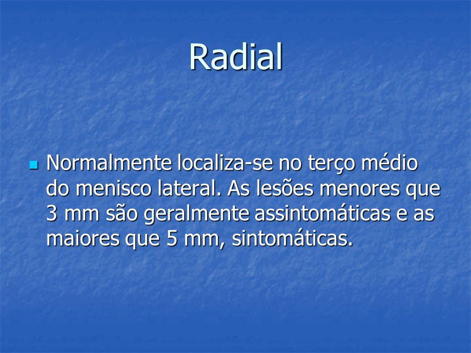 Radial Normalmente localiza-se no terço médio do menisco lateral. As lesões menores que 3 mm são geralmente assintomáticas e as maiores que 5 mm, sint