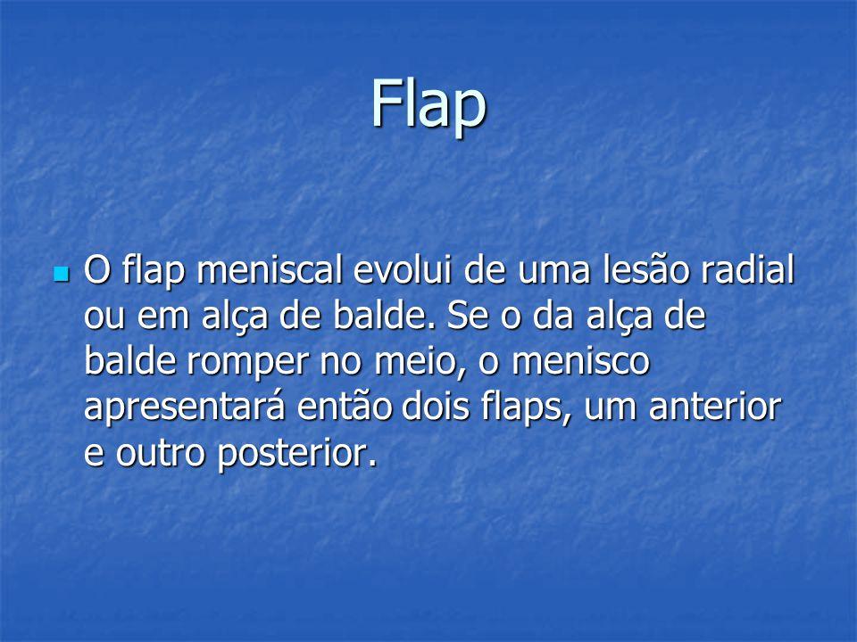 O flap meniscal evolui de uma lesão radial ou em alça de balde. Se o da alça de balde romper no meio, o menisco apresentará então dois flaps, um anter