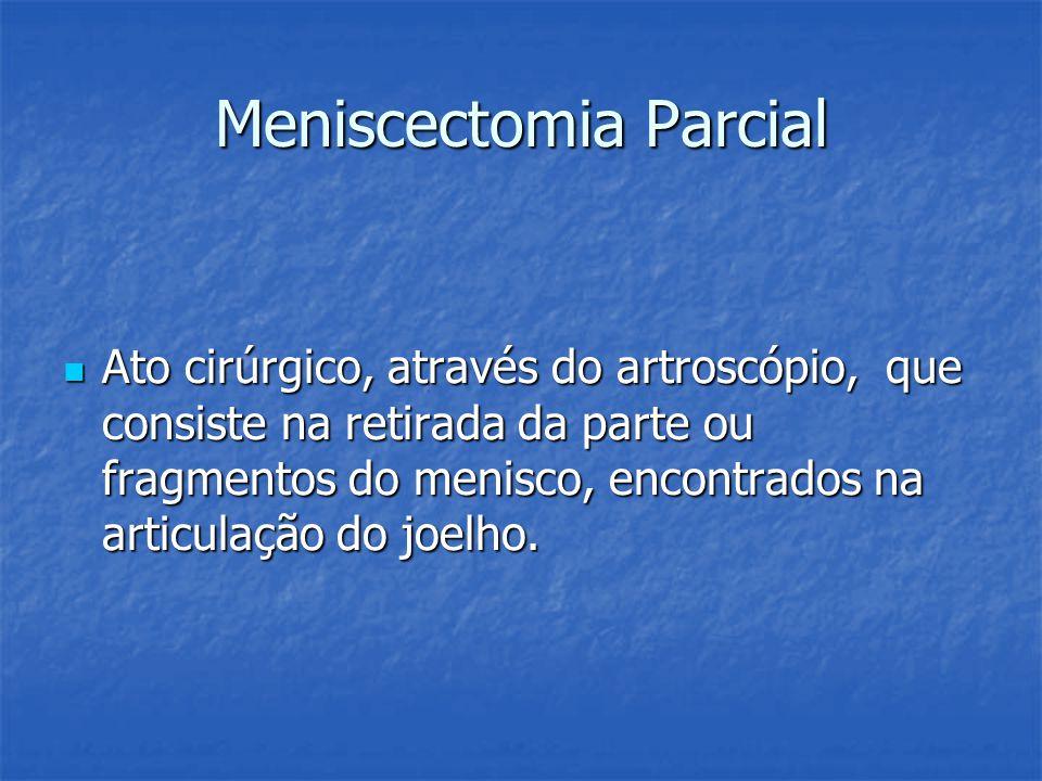 Meniscectomia Parcial Ato cirúrgico, através do artroscópio, que consiste na retirada da parte ou fragmentos do menisco, encontrados na articulação do