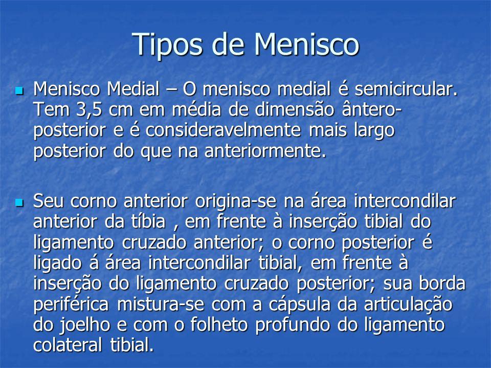 Tipos de Menisco Menisco Medial – O menisco medial é semicircular. Tem 3,5 cm em média de dimensão ântero- posterior e é consideravelmente mais largo