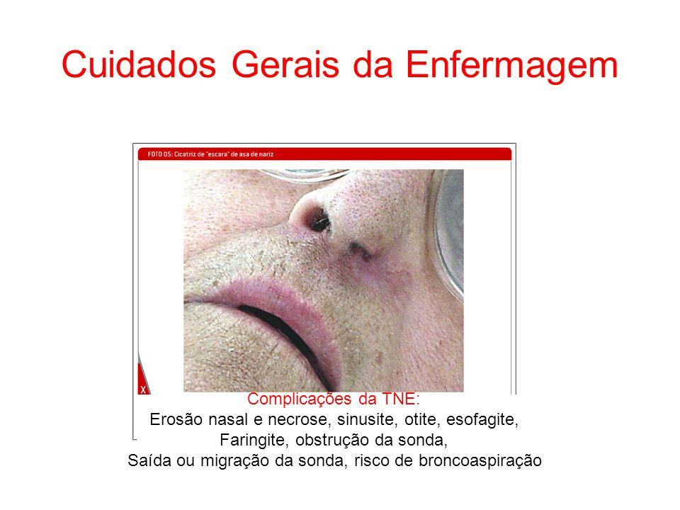 Cuidados Gerais da Enfermagem Complicações da TNE: Erosão nasal e necrose, sinusite, otite, esofagite, Faringite, obstrução da sonda, Saída ou migraçã