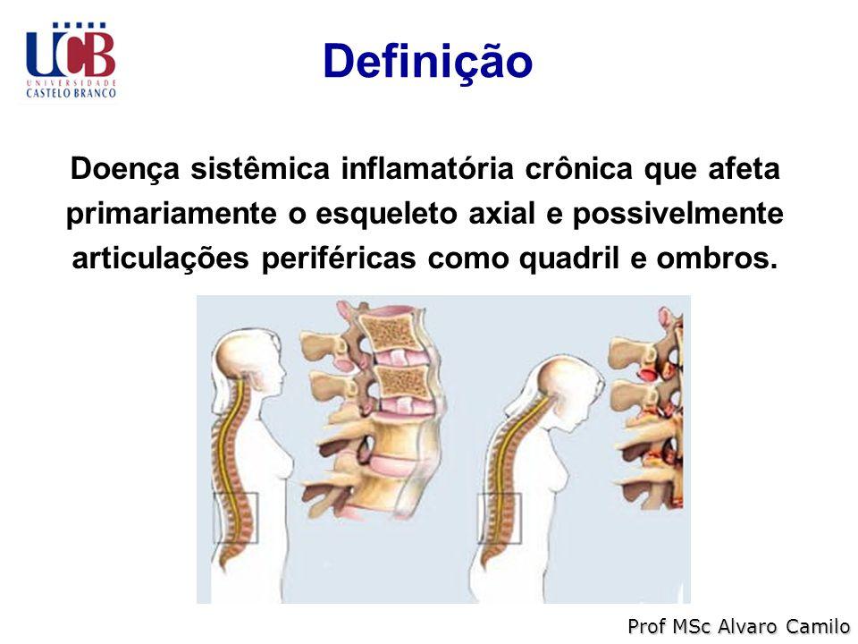 Definição Prof MSc Alvaro Camilo Doença sistêmica inflamatória crônica que afeta primariamente o esqueleto axial e possivelmente articulações periféricas como quadril e ombros.