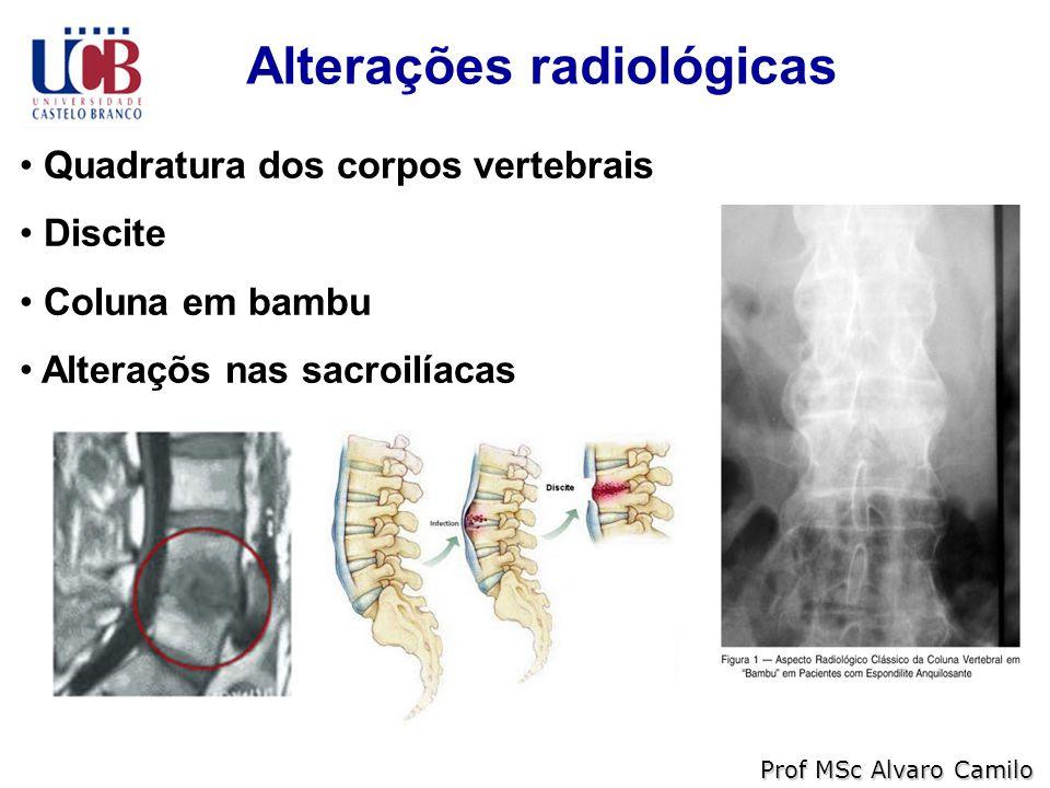 Alterações radiológicas Prof MSc Alvaro Camilo Quadratura dos corpos vertebrais Discite Coluna em bambu Alteraçõs nas sacroilíacas