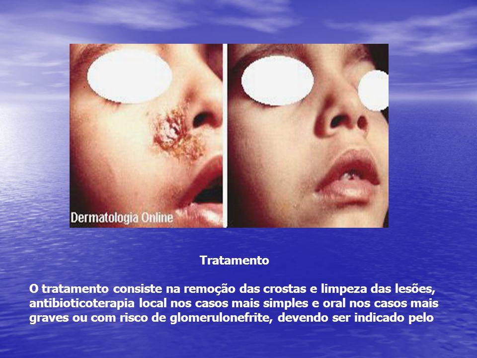 Tratamento O tratamento consiste na remoção das crostas e limpeza das lesões, antibioticoterapia local nos casos mais simples e oral nos casos mais gr