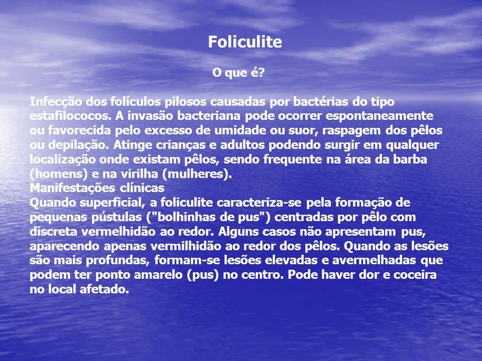Foliculite O que é? Infecção dos folículos pilosos causadas por bactérias do tipo estafilococos. A invasão bacteriana pode ocorrer espontaneamente ou