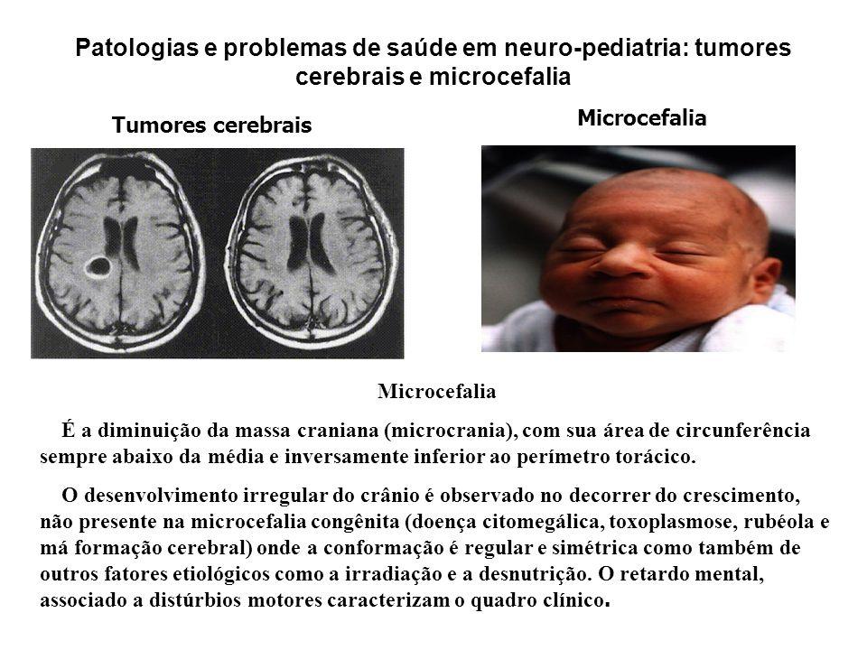 Patologias e problemas de saúde em neuro-pediatria: tumores cerebrais e microcefalia Tumores cerebrais Microcefalia É a diminuição da massa craniana (