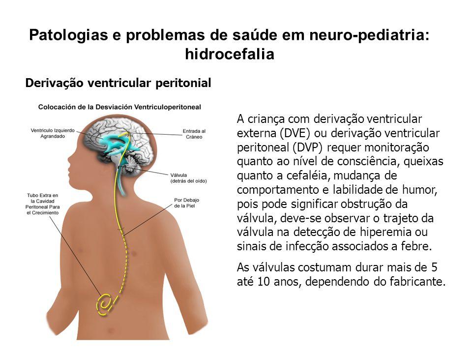 Patologias e problemas de saúde em neuro-pediatria: hidrocefalia Derivação ventricular peritonial A criança com derivação ventricular externa (DVE) ou