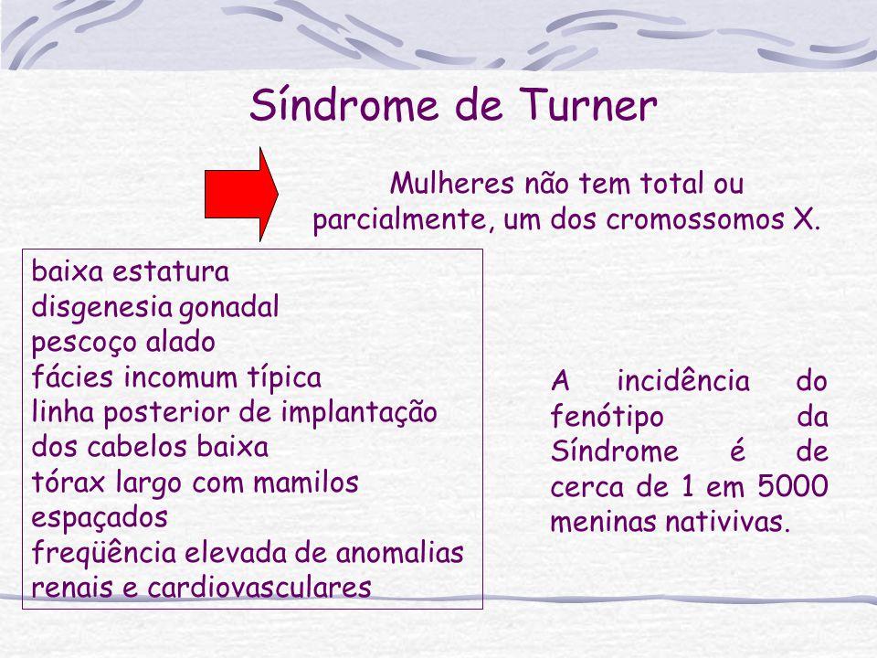 Síndrome de Turner Mulheres não tem total ou parcialmente, um dos cromossomos X. baixa estatura disgenesia gonadal pescoço alado fácies incomum típica