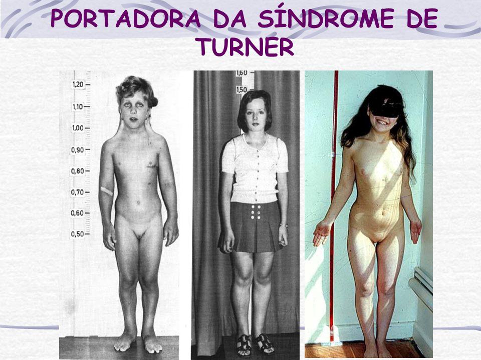 PORTADORA DA SÍNDROME DE TURNER