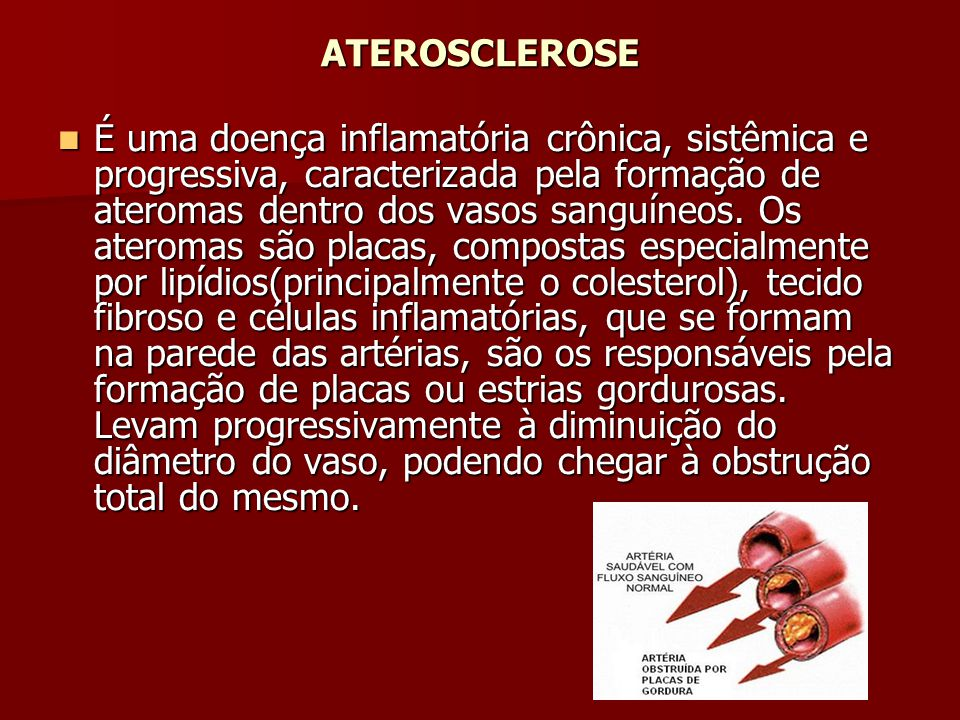 ATEROSCLEROSE É uma doença inflamatória crônica, sistêmica e progressiva, caracterizada pela formação de ateromas dentro dos vasos sanguíneos. Os ater