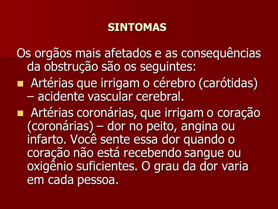 SINTOMAS Os orgãos mais afetados e as consequências da obstrução são os seguintes: Artérias que irrigam o cérebro (carótidas) – acidente vascular cere