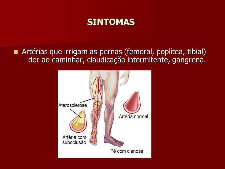 SINTOMAS Artérias que irrigam as pernas (femoral, poplítea, tibial) – dor ao caminhar, claudicação intermitente, gangrena. Artérias que irrigam as per