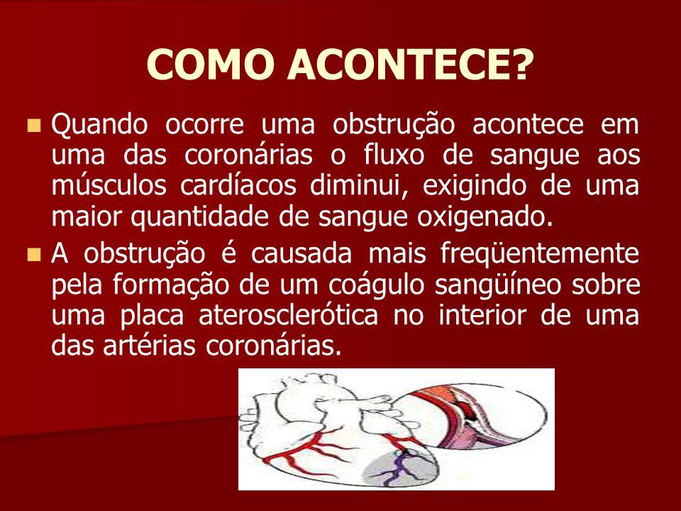 COMO ACONTECE? Quando ocorre uma obstrução acontece em uma das coronárias o fluxo de sangue aos músculos cardíacos diminui, exigindo de uma maior quan