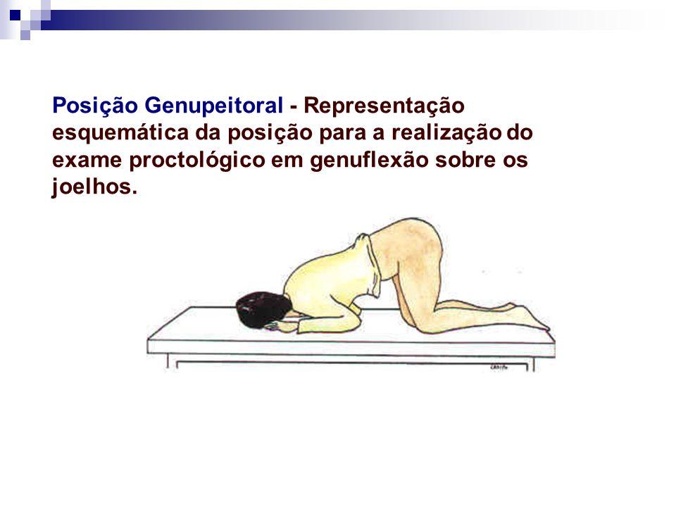 Posição Genupeitoral - Representação esquemática da posição para a realização do exame proctológico em genuflexão sobre os joelhos.