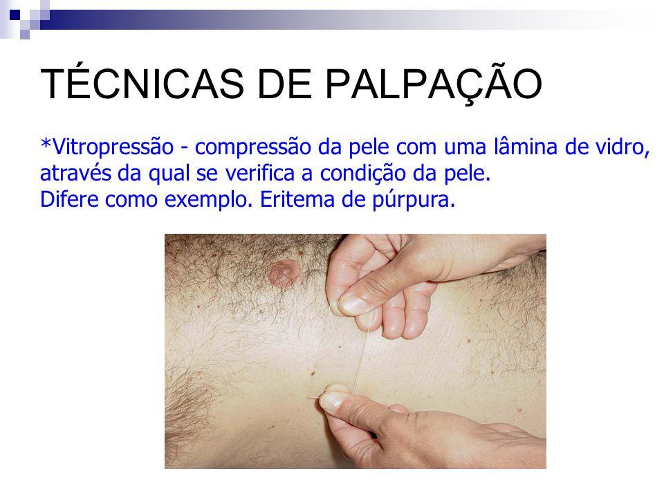 TÉCNICAS DE PALPAÇÃO *Vitropressão - compressão da pele com uma lâmina de vidro, através da qual se verifica a condição da pele. Difere como exemplo.