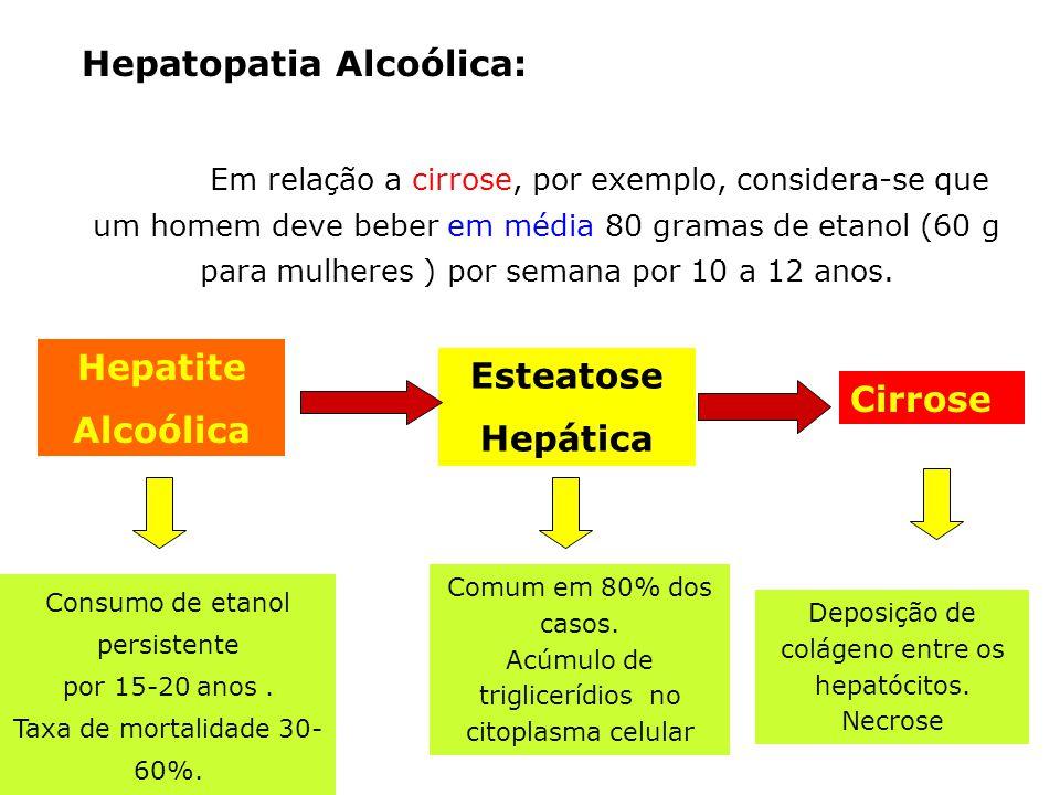 Hepatopatia Alcoólica: Em relação a cirrose, por exemplo, considera-se que um homem deve beber em média 80 gramas de etanol (60 g para mulheres ) por