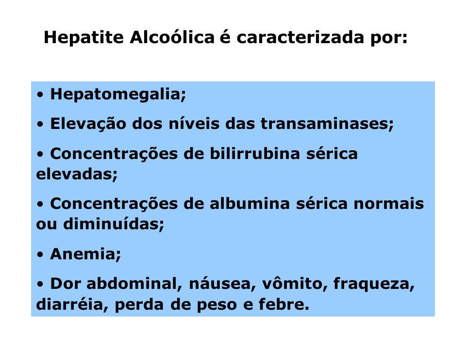 Hepatite Alcoólica é caracterizada por: Hepatomegalia; Elevação dos níveis das transaminases; Concentrações de bilirrubina sérica elevadas; Concentraç