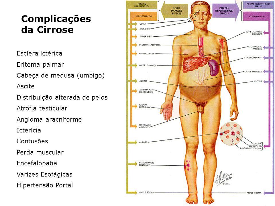 Complicações da Cirrose Esclera ictérica Eritema palmar Cabeça de medusa (umbigo) Ascite Distribuição alterada de pelos Atrofia testicular Angioma ara