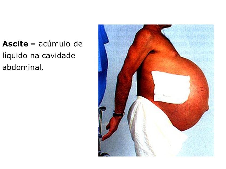 Ascite – acúmulo de líquido na cavidade abdominal.