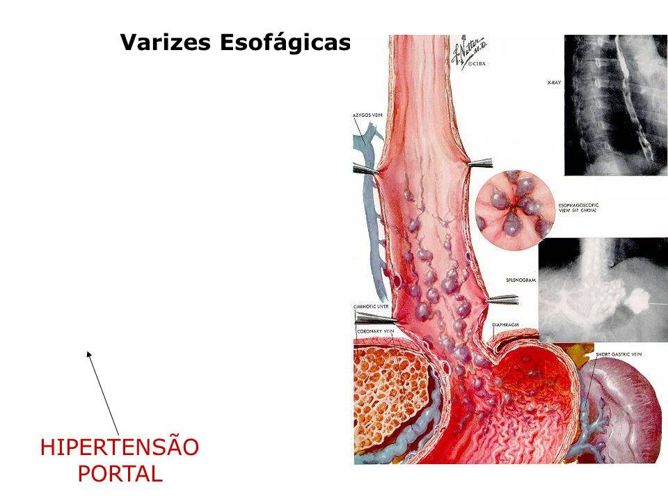 Varizes Esofágicas HIPERTENSÃO PORTAL