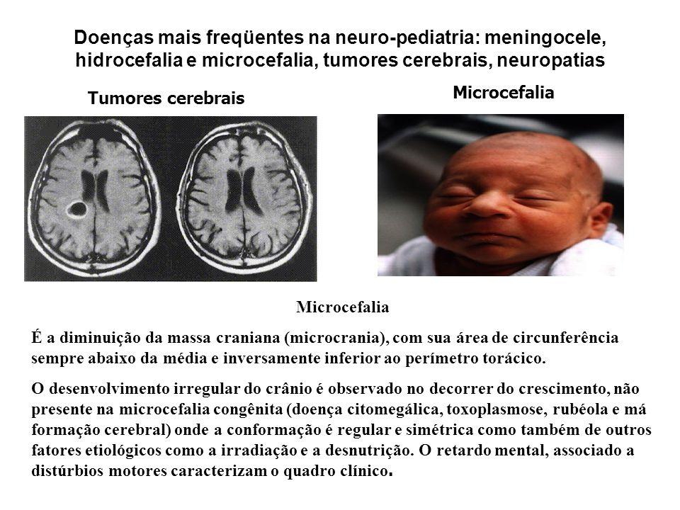 Doenças mais freqüentes na neuro-pediatria:meningocele, hidrocefalia e microcefalia, tumores cerebrais, neuropatias Hidrocefalia É a alteração craniana mais comum do aumento do perímetro cefálico (PC) no RN.