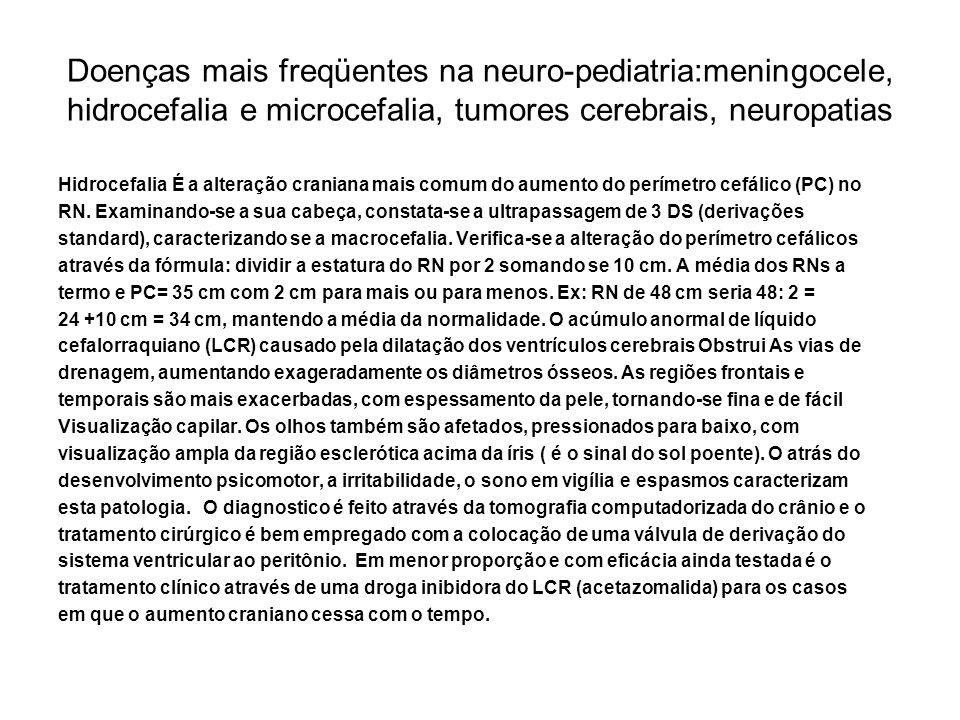 Doenças mais freqüentes na neuro-pediatria:meningocele, hidrocefalia e microcefalia, tumores cerebrais, neuropatias Hidrocefalia É a alteração cranian