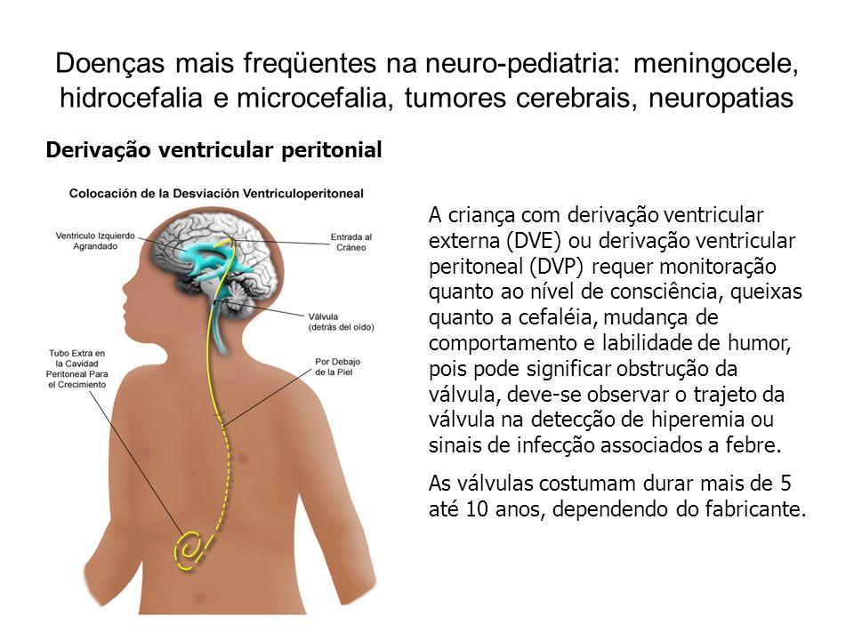 Doenças mais freqüentes na neuro-pediatria: meningocele, hidrocefalia e microcefalia, tumores cerebrais, neuropatias Condutas de enfermagem com crianças portadoras de DVE e hidrocefalia Observar a drenagem, coloração e volume; Manter o nível da bolsa coletora a 10 cm do pavilhão auditivo, a drenagem geralmente permanece aberta e drena por ação da gravidade, ao manipular a criança deve-se ter a preocupação em fechar o Torneirinha de três vias após terminar a manipulação abrir a torneira novamente; Dependendo do volume da drenagem às vezes é necessário fazer reposição do volume drenado com salina ou ringer lactado; Evitar colocar a criança sobre a válvula, principalmente após a colocação da mesma para evitar compressão e obstrução da mesma; Manter os olhos da crianças lubrificados com colírio ou pomadas oftálmicas prescritas pelo pediatra, caso contrário usar soro fisiológico; Observar o curativo da válvula a fim de detectar sinais de extravasamento de líquor ou sinais de infecção; Tomar cuidados para não tracionar o cateter e as conexões