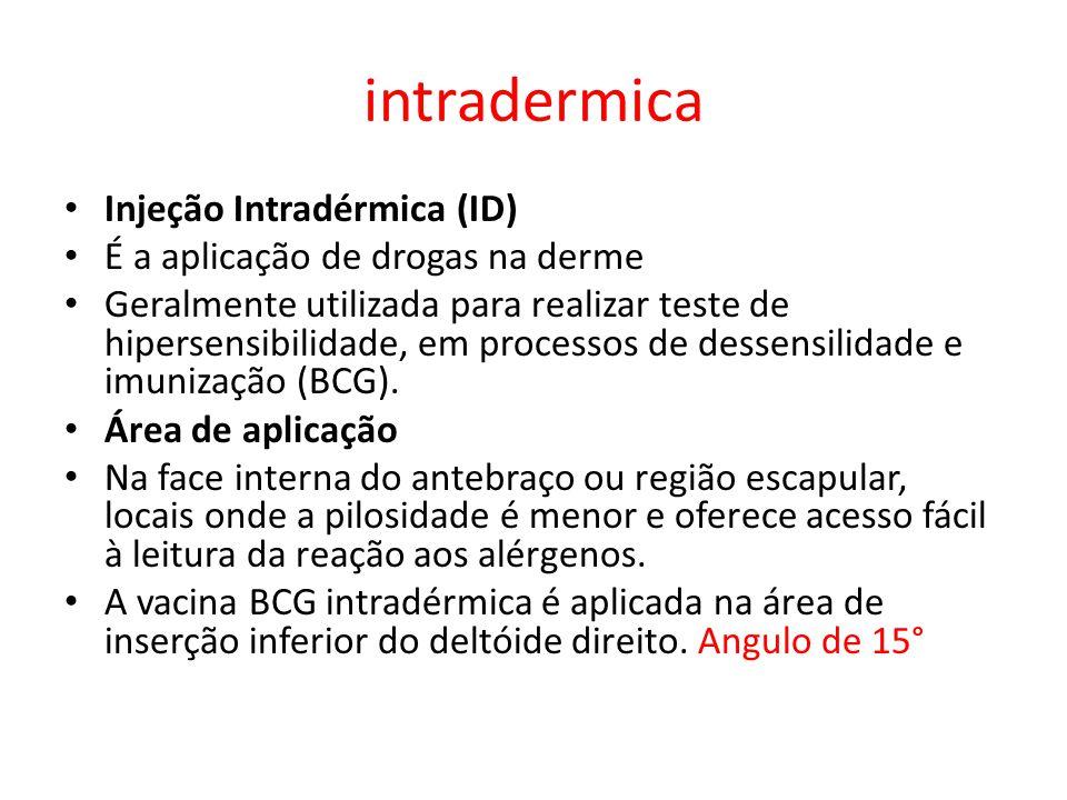 intradermica Injeção Intradérmica (ID) É a aplicação de drogas na derme Geralmente utilizada para realizar teste de hipersensibilidade, em processos de dessensilidade e imunização (BCG).