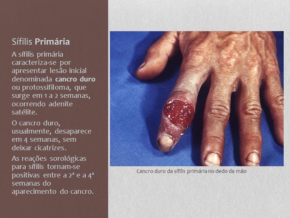 Sífilis Primária A sífilis primária caracteriza-se por apresentar lesão inicial denominada cancro duro ou protossifiloma, que surge em 1 a 2 semanas,