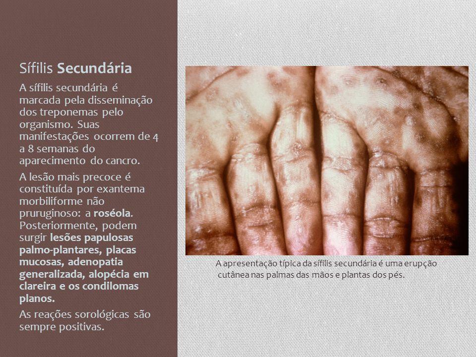 Sífilis Secundária A sífilis secundária é marcada pela disseminação dos treponemas pelo organismo. Suas manifestações ocorrem de 4 a 8 semanas do apar