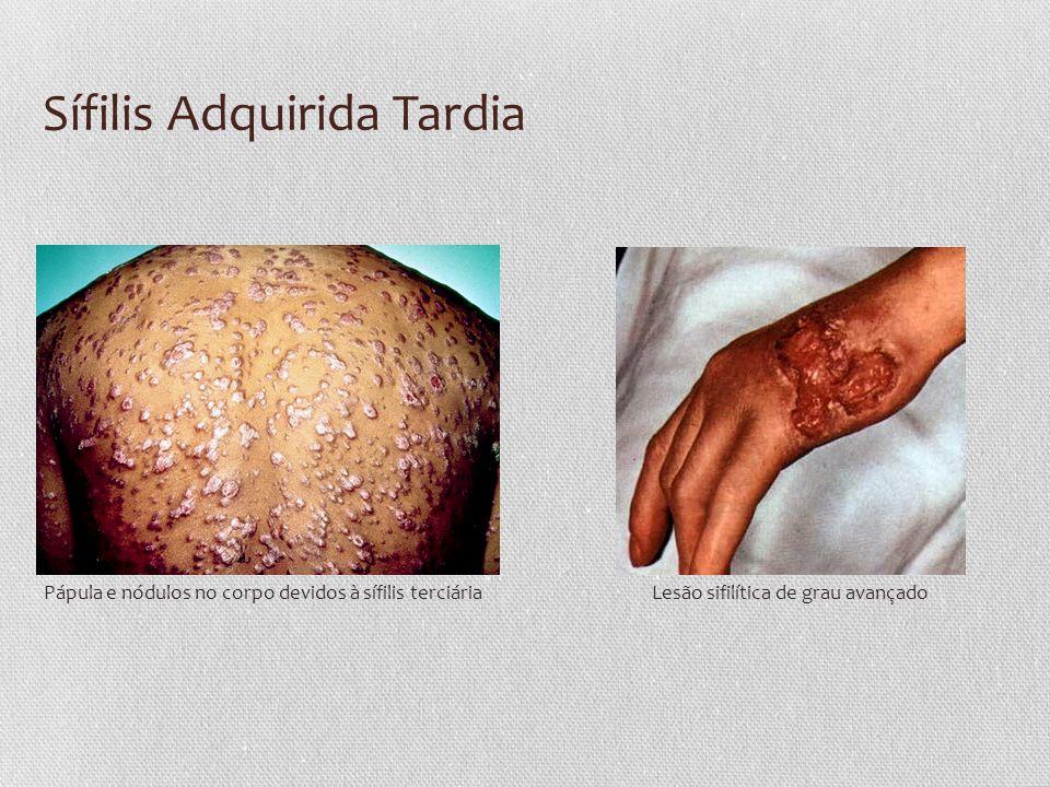 Sífilis Adquirida Tardia Pápula e nódulos no corpo devidos à sífilis terciáriaLesão sifilítica de grau avançado