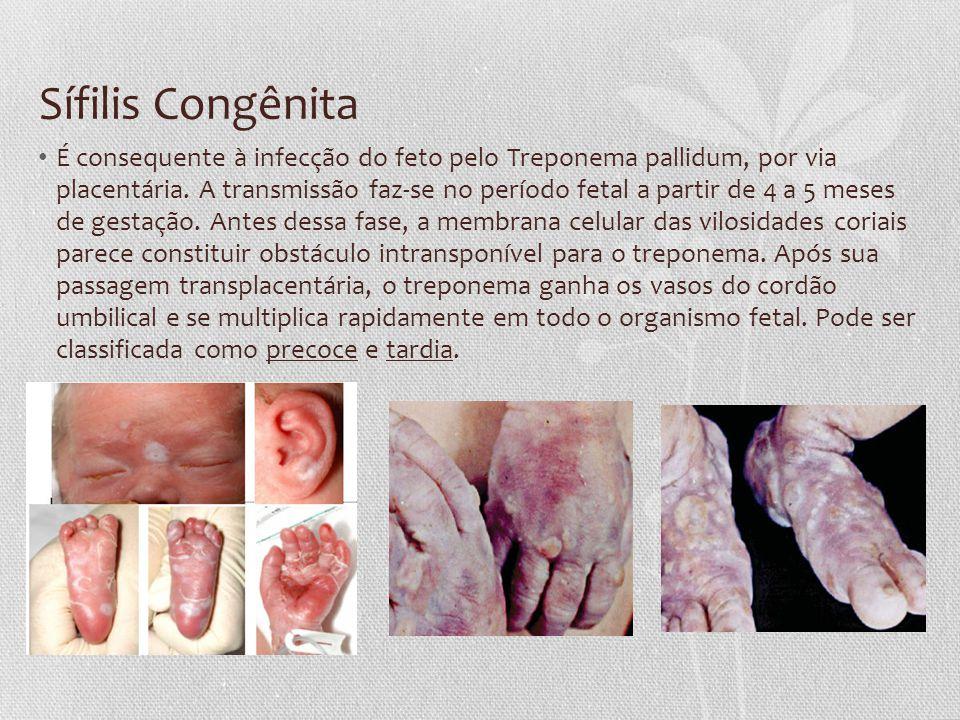 Sífilis Congênita É consequente à infecção do feto pelo Treponema pallidum, por via placentária. A transmissão faz-se no período fetal a partir de 4 a