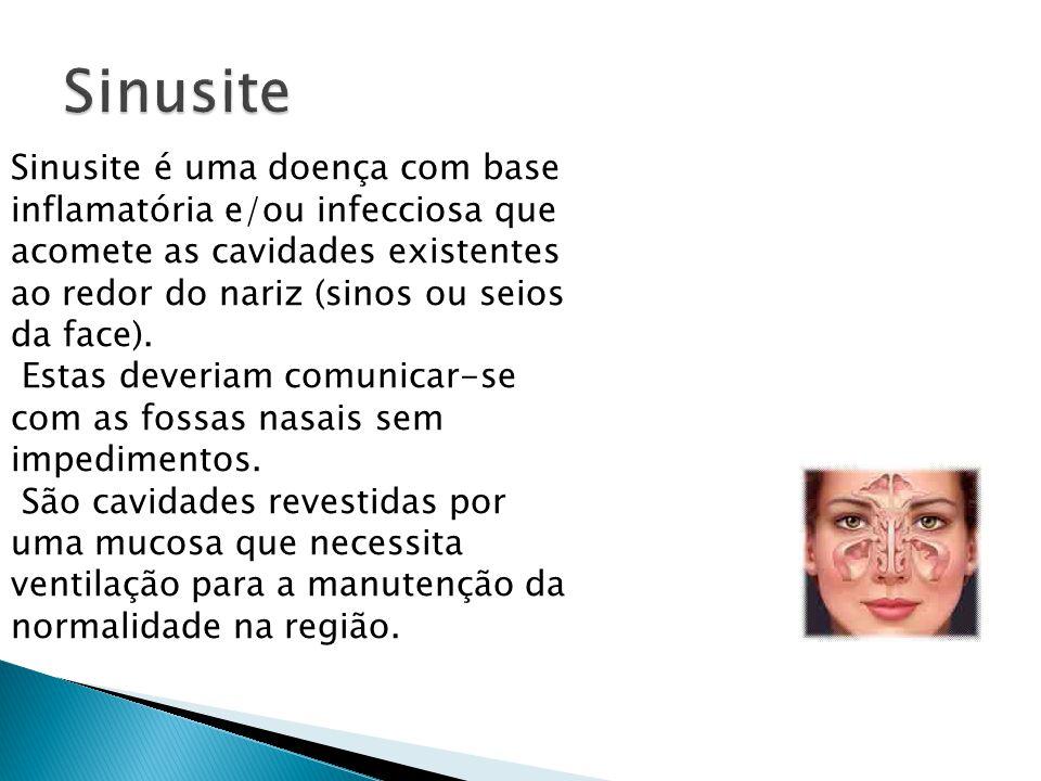 Sinusite é uma doença com base inflamatória e/ou infecciosa que acomete as cavidades existentes ao redor do nariz (sinos ou seios da face). Estas deve
