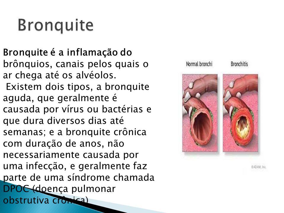 Bronquite é a inflamação do brônquios, canais pelos quais o ar chega até os alvéolos. Existem dois tipos, a bronquite aguda, que geralmente é causada
