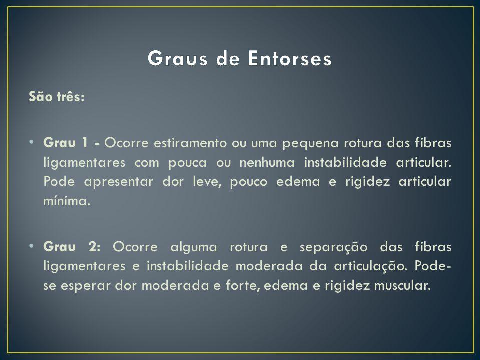 Grau 3 - Um entorse de grau 3 é uma completa ruptura do ligamento.