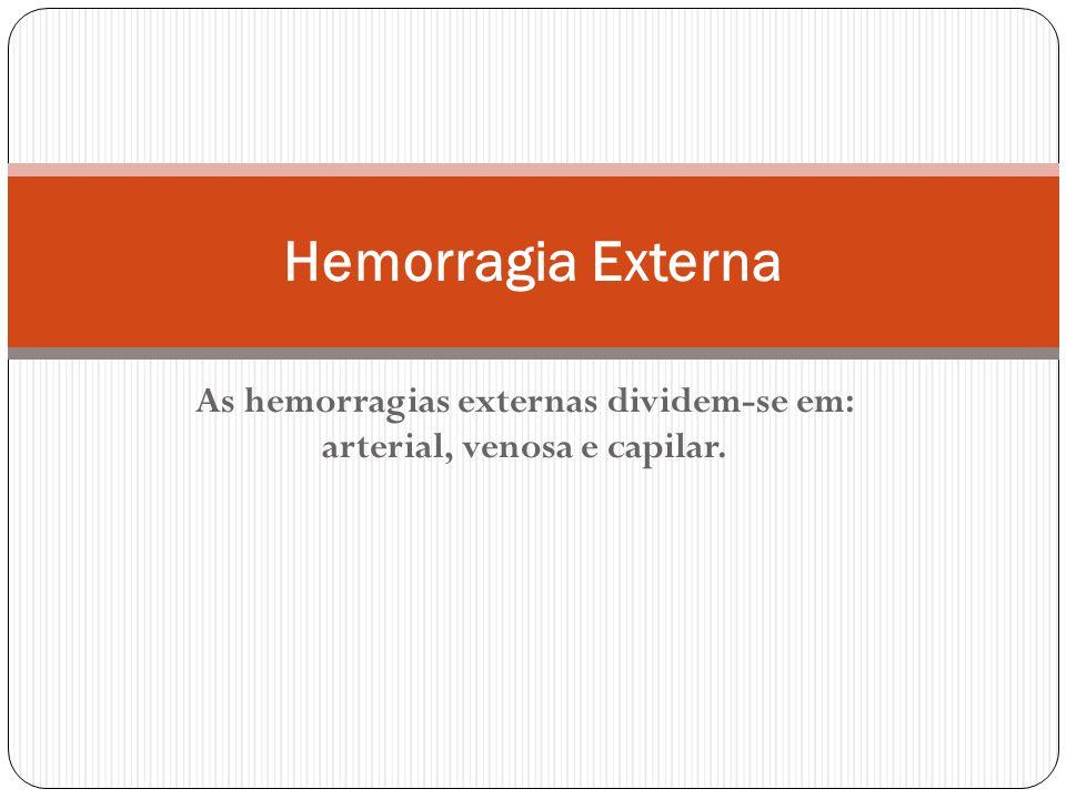 As hemorragias externas dividem-se em: arterial, venosa e capilar. Hemorragia Externa