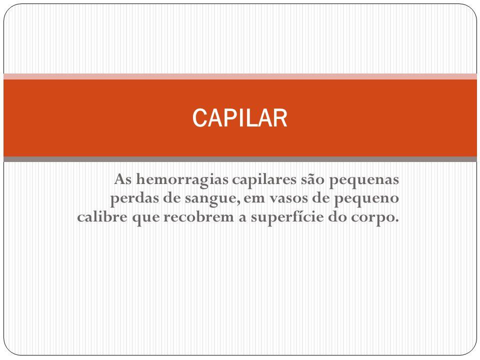 As hemorragias capilares são pequenas perdas de sangue, em vasos de pequeno calibre que recobrem a superfície do corpo.