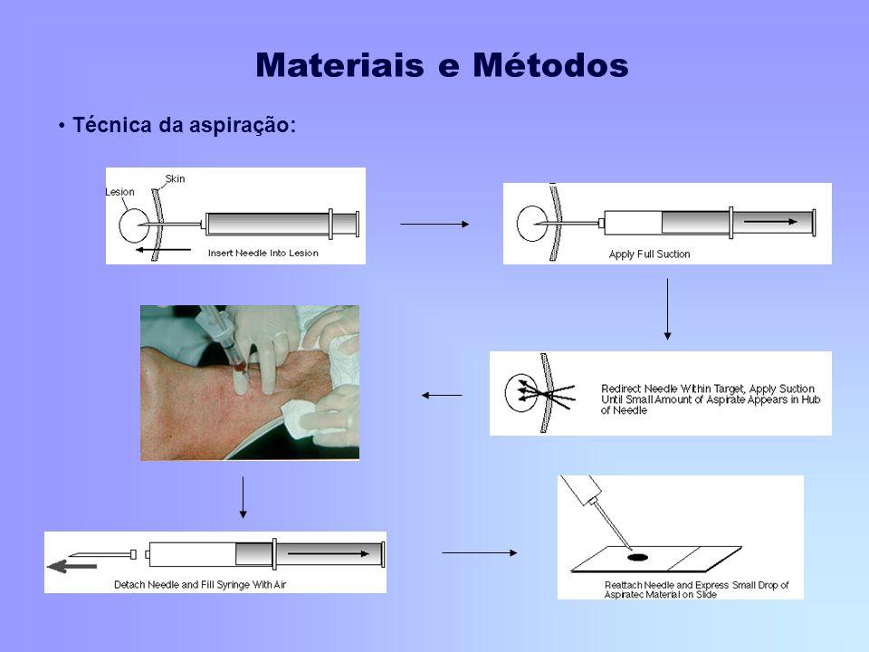 Técnica da aspiração: Materiais e Métodos