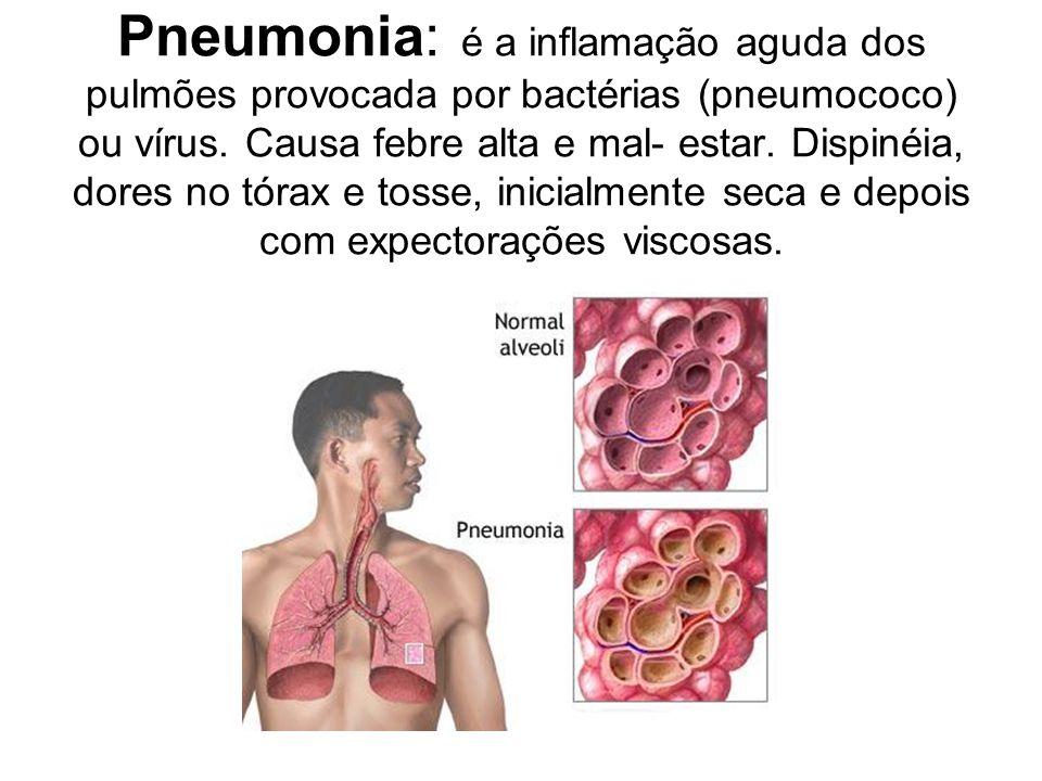 Pneumonia: é a inflamação aguda dos pulmões provocada por bactérias (pneumococo) ou vírus. Causa febre alta e mal- estar. Dispinéia, dores no tórax e