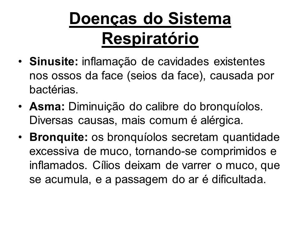 Doenças do Sistema Respiratório Sinusite: inflamação de cavidades existentes nos ossos da face (seios da face), causada por bactérias. Asma: Diminuiçã