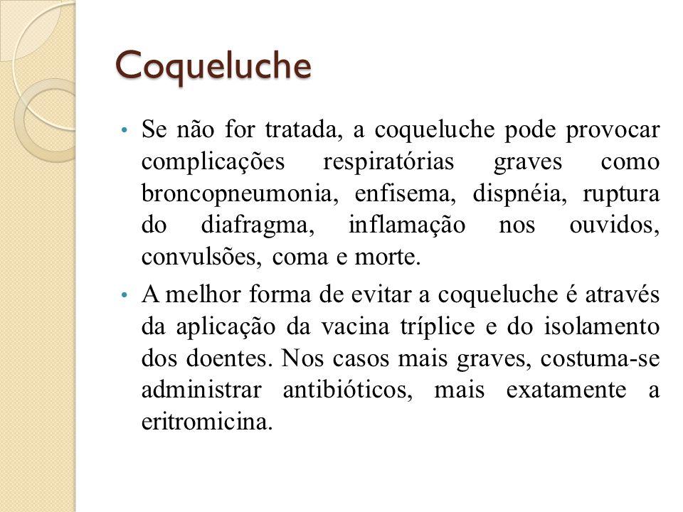 Coqueluche Se não for tratada, a coqueluche pode provocar complicações respiratórias graves como broncopneumonia, enfisema, dispnéia, ruptura do diafragma, inflamação nos ouvidos, convulsões, coma e morte.