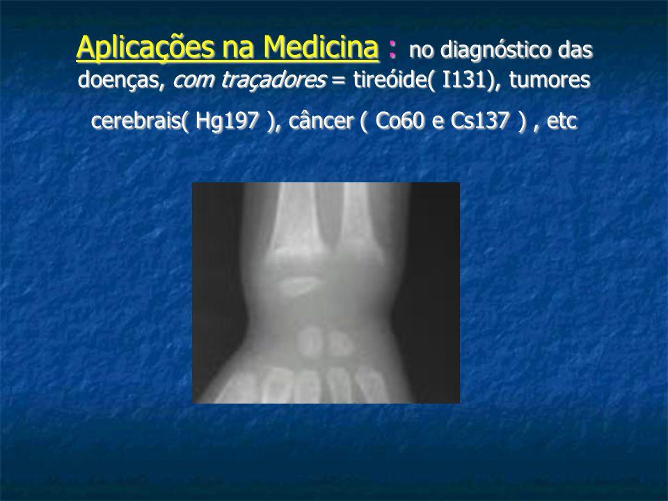 Aplicações na Medicina : no diagnóstico das doenças, com traçadores = tireóide( I131), tumores cerebrais( Hg197 ), câncer ( Co60 e Cs137 ), etc